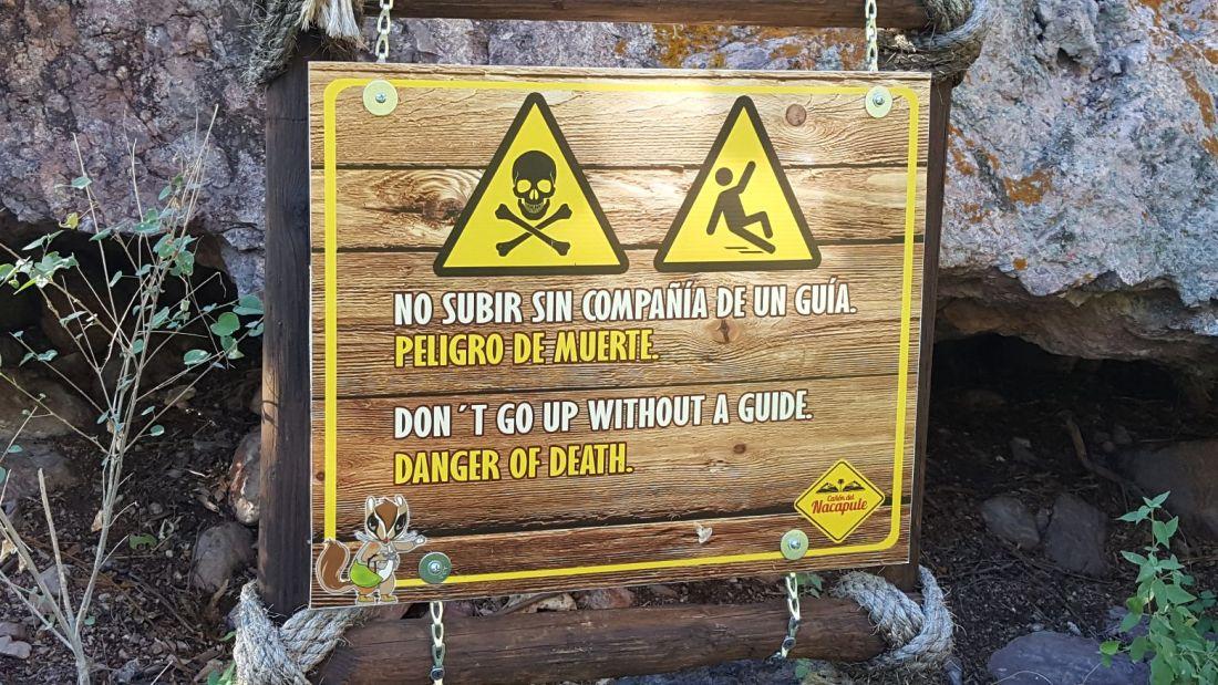Nacapule Sign